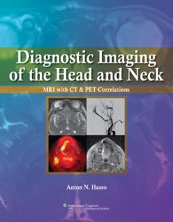 Diagnostic Imaging of the Head and Neck