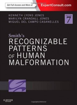 Smith Recognizable Patterns of Human Malformation
