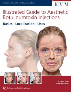 Illustrated Guide to Aesthetic Botulinum Toxin Injections
