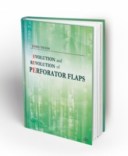 Evolution and Revolution of Perforator Flaps