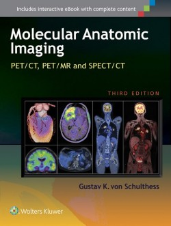 Molecular Anatomic Imaging